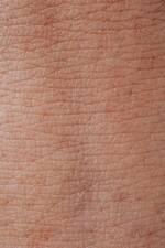skin-pain